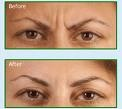 An example of before and after a Botox treatment between the brows