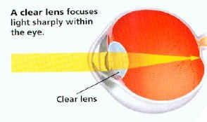 a clear lens allow light rays to focus