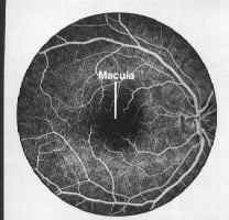 Normal retina with dye inside the vessles