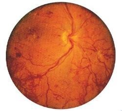 New abnormal blood vessels (sqiggly red lines) growing means proliferative retinopathy