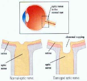 "Optic nerve damage or ""cupping"""