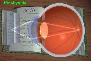 The focus point moves behind the retina as the object is pulled near and the focus unit can't adjust